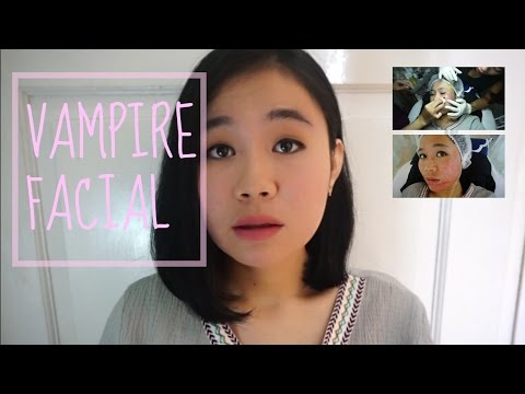 Acne Scars Treatment : VAMPIRE FACIAL A.k.a PRP (Proses)