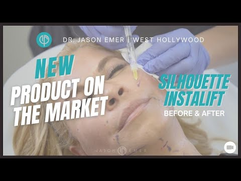 Non-Surgical Facelift / Silhouette Instalift / Cheek Neck Lifting Sutures / Beverly Hills, CA