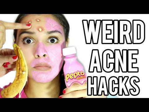 10 WEIRD Acne & Zit Hacks that work FAST!