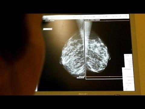 Brustkrebs-Studie: Künftig mehr Hormon- statt Chemotherapien?