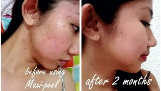 hey guys welcome to my channel,!!this is the result of using maxi-peel exfoliant solution 2 after 2 months, im soo impressed about this product because it's soo cheap in the market yet sooo effective,you dont have to do expensive facial,. pimples are treatable, you just have to be patient if it's taking awhile, but in order for your skin to be flawless again change your lifestyle, and you will see the results,. make it a habit ;)Products mentioned:Maxi-peel exfoliant solution 2maxi-peel facial cleanserthe body shop - tea tree oilnature republic - soothing & moisture aloe vera gelDove white barthis is not sponsored by maxi-peel or any brand, these are just my honest review and experienced on the product.Good luck on your skin care routine for the next few days. :)xoxo, Ki