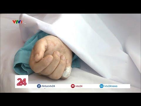 Nối liền cánh tay bị đứt cho nạn nhân tai nạn trên đèo Hải Vân @ vcloz.com