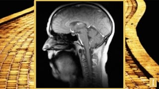Thumbnail of New Super-Fast MRI Technique: Singing 'If I Only Had a Brain' video