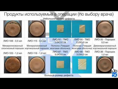 Операция № 18 Пластика альвеоляра методом расщепления