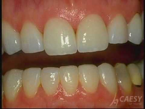 BONDING - Veneers, Lumineers, Teeth Bonding, white fillings, teeth whitening, dental implants, invisalign.