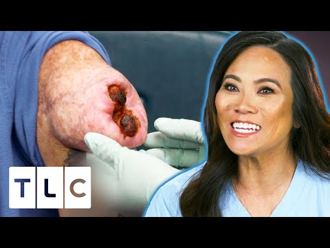 Dr. Lee Removes An Open Wounded Lipoma | Dr. Pimple Popper Pop Ups