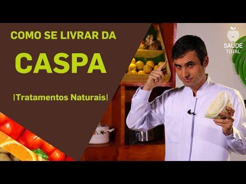 Como se livrar da CASPA | Tratamentos Naturais | Saúde Total