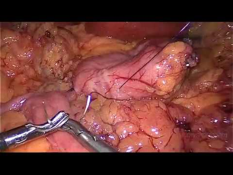 SINGLE ANASTOMOSIS SLEEVE ILEAL BYPASS – STAPLED