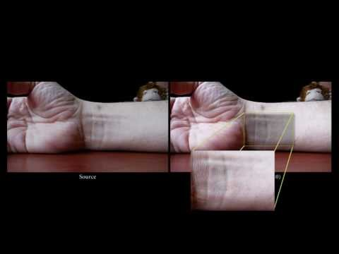 New X-Ray Vision-Style Video Can Show A Pulse Beating Through Skin