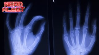Ultrasound Catches What Happens When a Knuckle Pops on Video