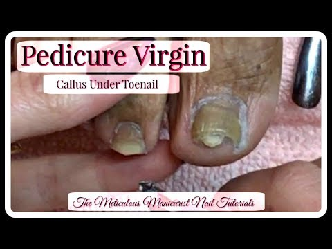 Nail salon -  Pedicure Tutorial Clients First Pedicure Ever Thick Toenails Callus Under Nail