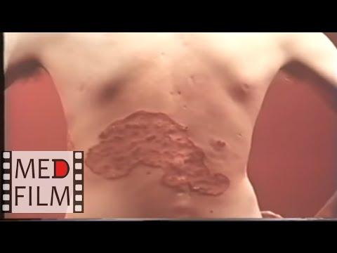 Вылечил грибок ногтей тербинафином