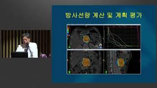 췌장암 건강 - 방사선치료 - 미리보기