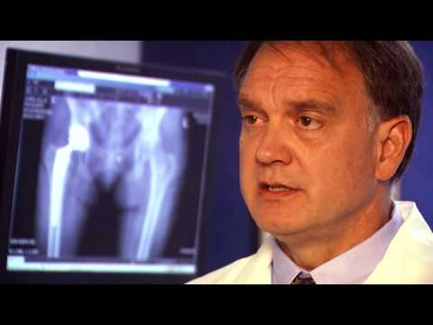Sentara - Dr. Wilford Gibson, orthopedic surgeon at Sentara OrthoJoint Center at Sentara Hospital talks about hip pain and joint replacement. More information is avail...