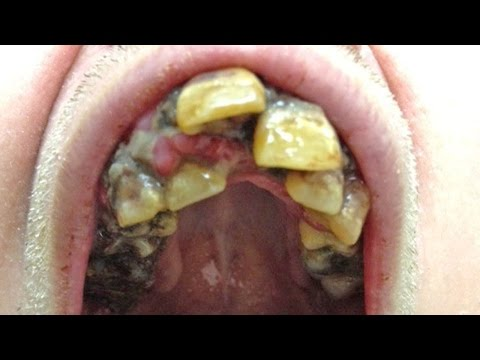 Teeth Pulling, Tooth Extractions And Ugliest Mouth!