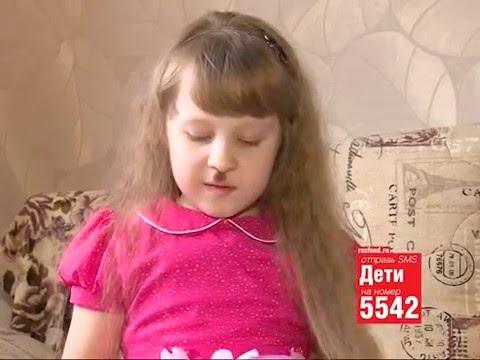 7 лет, пигментный невус (опухолевидное родимое пятно) верхней губы, требуется операция