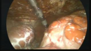 Laparoscopic peritoneal lavage for primary bacterial peritonitis caused by peritoneal dialysis