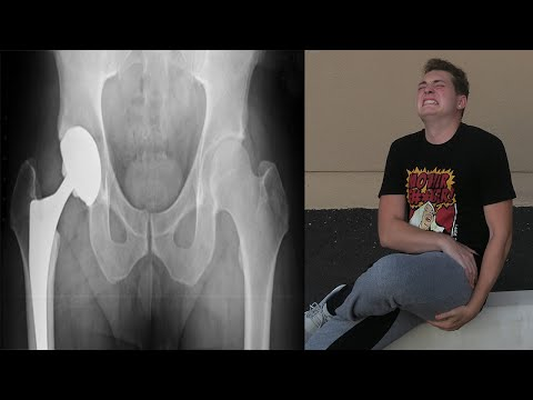 I BROKE MY HIP!? - FUNNIEST / MOST PAINFUL CHALLENGE EVER! - FAIL_Legjobb vide�k: Vicces