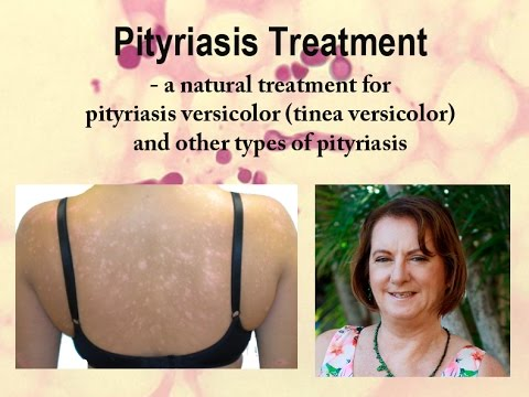 Pityriasis treatment by Healthy Skin Clinic
