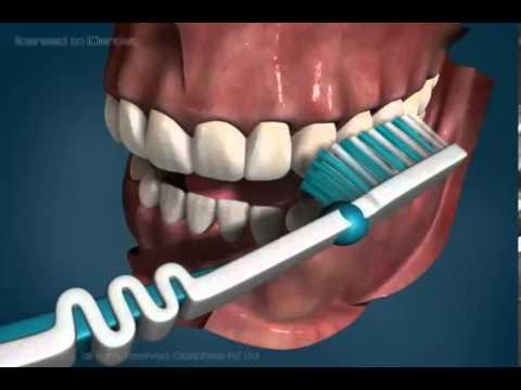 Patient Education - Teeth Brushing