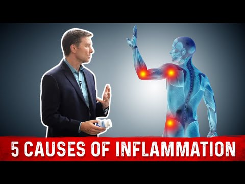 Stop the 5 Causes of Inflammation: FAST!
