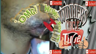 Dads abscess popped and drained #Du recorder