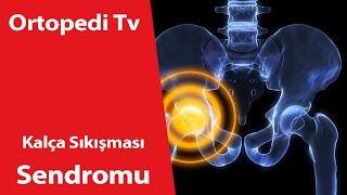 Kalça Sıkışması Sendromu Nedir? - Ortopedik Bilgi