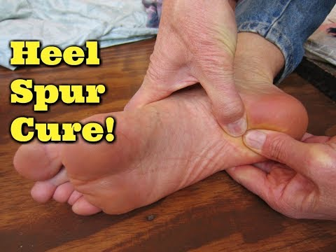 Natural Heel Spur Cure!  Sore Foot & Pain Remedy!