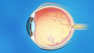 Glaucoma Laser Trabeculoplasty