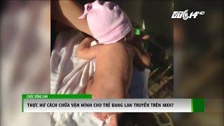 (VTC14) - Gần đây, trên mạng xã hội lan truyền chóng mặt đoạn clip chia sẻ về cách trị chứng vặn mình ở trẻ sơ sinh. Theo đoạn...