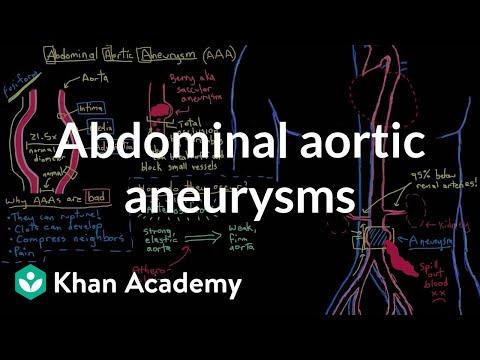 Abdominal aortic aneurysms | Circulatory System and Disease | NCLEX-RN | Khan Academy
