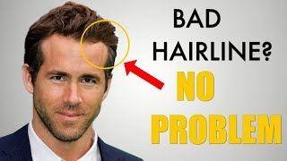 Video 5 Awesome Hairstyles for Widows Peak / Receding Hairline MP3, 3GP, MP4, WEBM, AVI, FLV Juli 2018