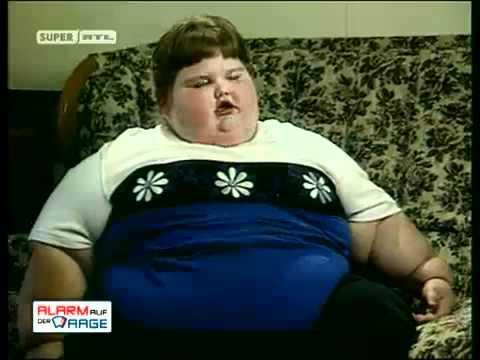 Dickste Kind der Welt - Fattest Child in the World