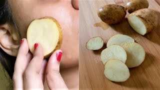 i rub Potato on my face & it removed my Dark spots and hyperpigmentation in 3 days