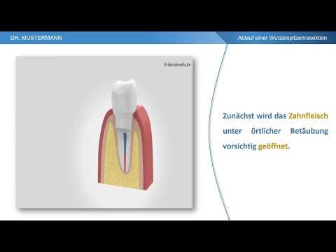 Ablauf der Behandlung - Wurzelspitzenresektion