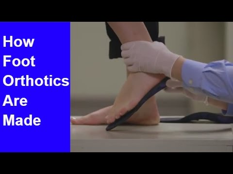 How Should Foot Orthotics Be Made? | Seattle Podiatrist