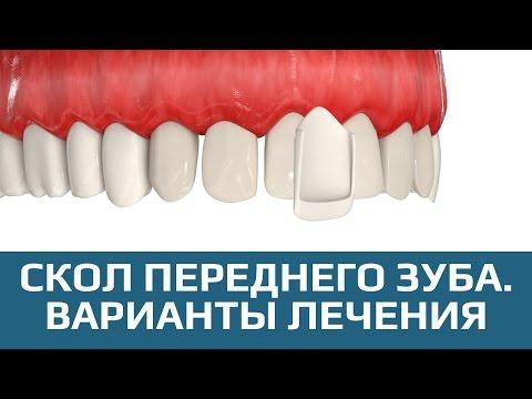 Варианты восстановления скола зуба при повреждении менее 20%