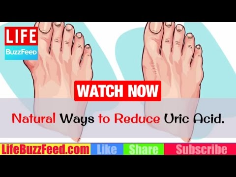 best essential oil for gout penyakit gout artritis adalah big toe hurts not gout