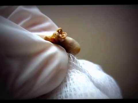 Sebaceous Cyst Squeezed For FUN pop that ZIT (Sebaceous)