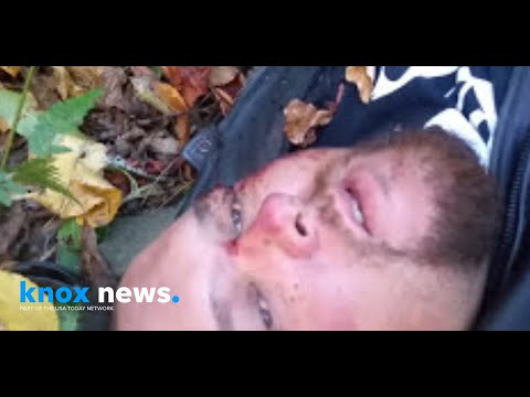 車禍跌落50呎山溝「爆肺斷12肋骨」 美漢躺地上拍「最後道別」