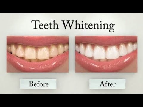 (Carbon Coco Teeth Whitening Review! - Duration: 3 minutes, 48 seconds.)