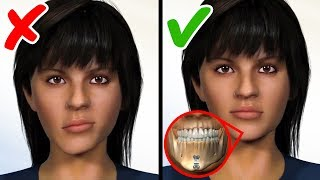 JAW SURGERY PROCEDURES THAT GIVE PEOPLE A NEW SMILE
