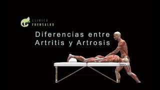 Artritis y Artrosis - Diferencias.