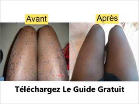Creme Hemorroide Jean Coutu – Hemorroides Symptomes
