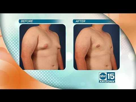 Natural Results offers surgical Gynecomastia augmentation