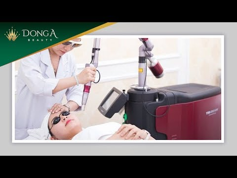 Video chứng minh hiệu quả trị tàn nhang của Yellow Laser Advanced