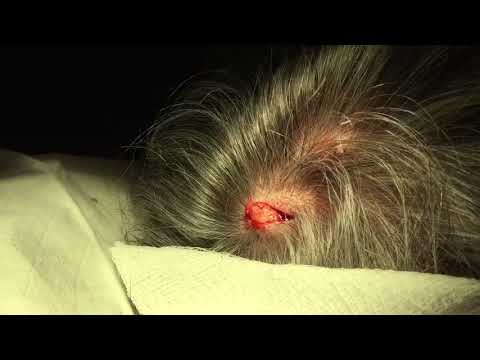 Awesome SCALP Cyst