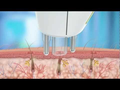 Лазерная эпиляция - современный и надежный способ удаления нежелательных волос