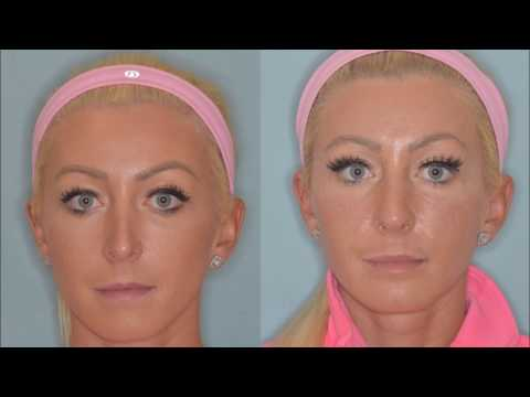 Revision rhinoplasty for the over-projected nose