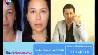Op Dr Mustafa Ali Yanık Orta Yüz Germe İşlemi Anlatıyor